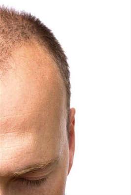 Botox izzadáskezelés